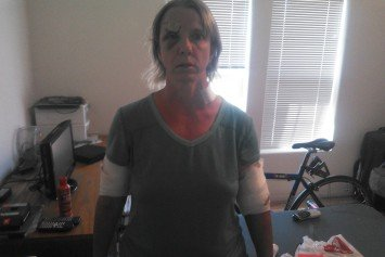 Marathon Runner Attacked by Bear in New Mexico Reveals Harrowing Story