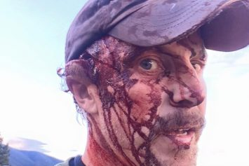 Man Films Gruesome Aftermath of Bear Attack